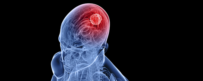 <br>A phase one study of 11 patients with glioblastoma who received injections of an investigational vaccine therapy and an approved chemotherapy showed the combination to be wel.... &lt;a href=&#39;https://corporate.dukehealth.org/news-listing/immunotherapy-glioblastoma-well-tolerated-survival-gains-observed?h=nl&#39; target=&#39;_blank&#39;&gt;More&lt;/a&gt;