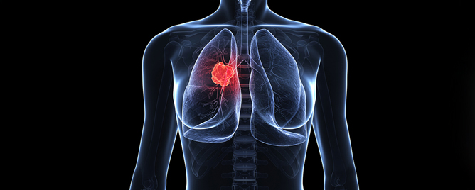 <br>The immunotherapy drug pembrolizumab, combined with chemotherapy, doubles survival in patients with non-squamous non-small cell lung cancer (NSNSCLC) lacking genetic changes .... &lt;a href=&#39;https://nyulangone.org/press-releases/combination-of-pembrolizumab-and-chemotherapy-doubles-survival-in-patients-with-metastatic-lung-cancer&#39; target=&#39;_blank&#39;&gt;More&lt;/a&gt;